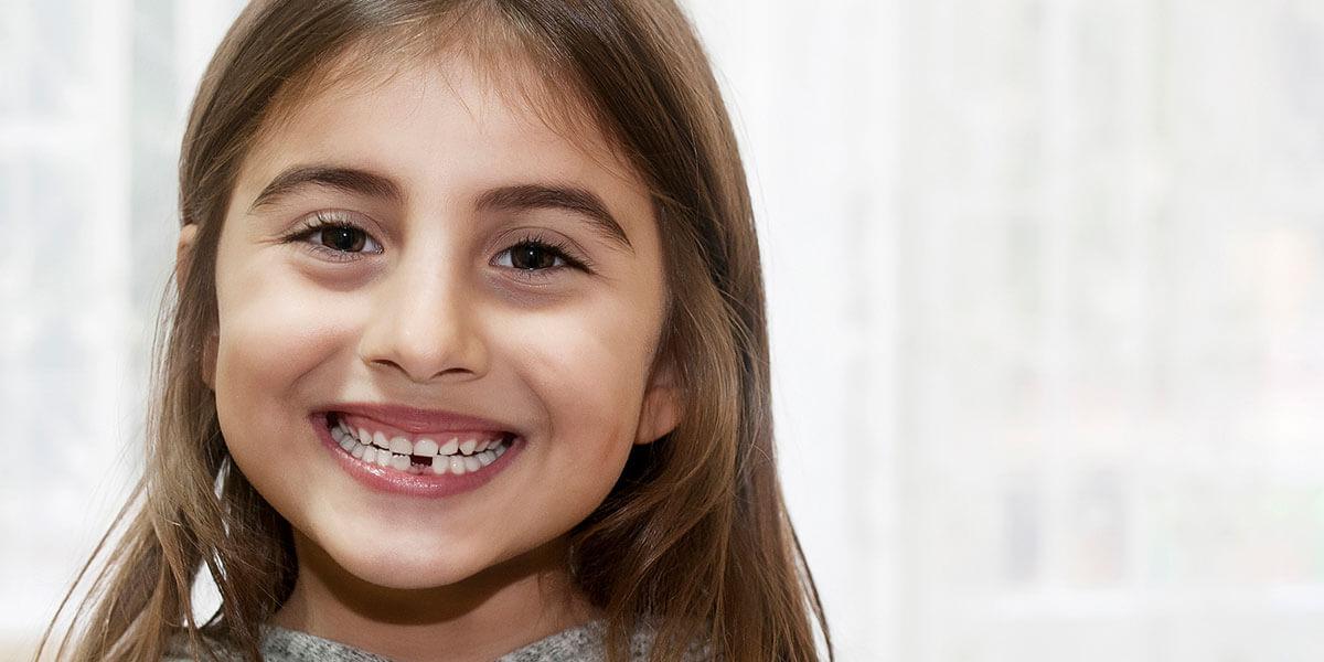 Interceptive orthodontics decorative image